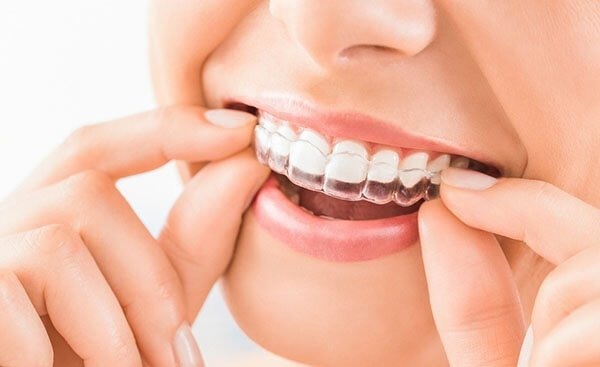 Invisalign-How-Effective-Are-These-Clear-Braces_600x400